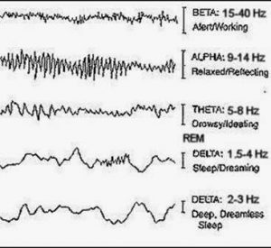 Brain wave activity during sleep